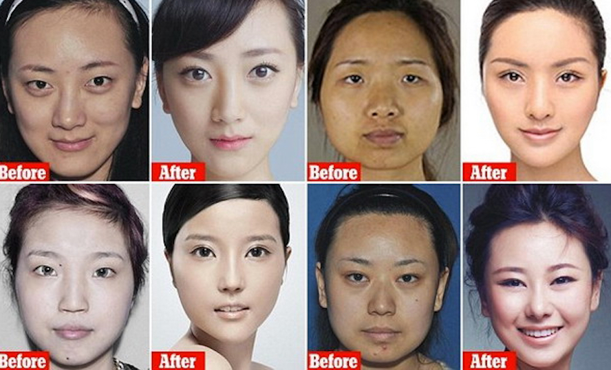 Chinese Plastic Surgery App SoYoung Raises Hundreds of Millions of RMB