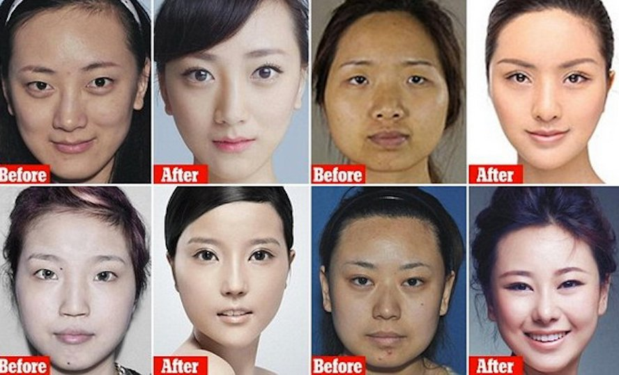 About Face: China's Plastic Surgery Market Grows Six Times Faster Than Global Average